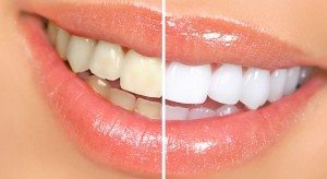 foods to eat for white teeth