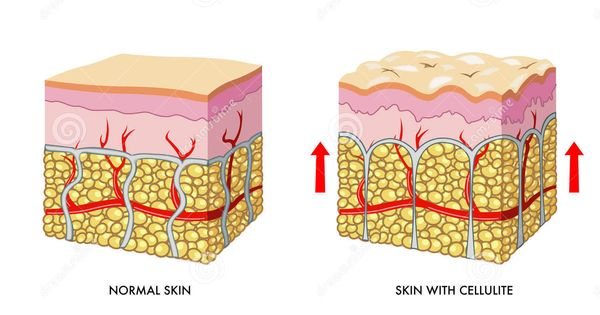 skin-with-without-cellulite